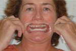 Figure 9: A full-smile photograph is achieved by having the patient say