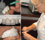 Figure 4B  A restorative dentist fabricated a multi-layer provisional using a cold curing acrylic.