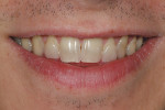 Figure 5A  This preoperative smile view demonstrates the shape and color of the teeth.Note that the midline is off center, and there is mild crowding.
