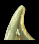 Figure 1A  These tooth sections depict the varying thicknesses of the enamel according tothe shape of the tooth and its location on the crown (Figure 1A courtesy of Dr. Stephan J. Paul; Figure 1Bcourtesy of Dr. Didier Dietschi).