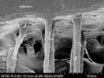 Figure 10  This SEM shows the simultaneous infiltration of the collagenfibers while decalcifying the inorganic component to the same depth indentin (courtesy of Dr. Perdigão).