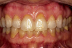 Figure 10  No gingival recession.