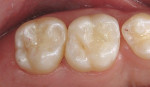 Figure 8C: The occlusal surfaces were restored with an etch-and-rinse adhesive and ananohybrid composite resin.j