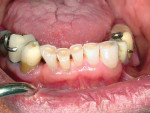 Figure 10  This view shows moderate to severe incisal wear of the mandibular anterior teeth.