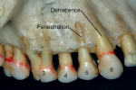 Figure 16  Dehiscence (tooth No. 5) and fenestration (teeth Nos. 3 and 6).