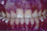 Figure 1d  One month after dental enamel microabrasion.