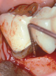 Figure 12  Surgical photograph of an intrabony defect on the mesial of tooth No. 31.