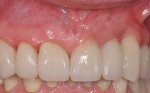 Figure 8  Clinical appearance of the ceramic fixed partialdenture: superficial application of pink composite allowed color blending with the surrounding gingival framework.
