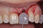 Figure 15  Implant site preparation through a 3-dimensionally correct surgical guide. Note that flap access was used in order to bone graft the facial of the implant.