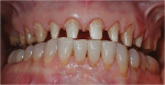 Figure 3   Tooth preparations were completed for full-coverage monolithic ceramic restorations.