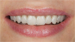 Figure 7  Intra-oral photograph demonstrating the natural esthetic result of treatment.