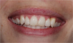 Figure 8  The high smile with the significant loss of papilla and