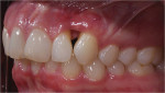 Figure 9  The high smile with the significant loss of papilla and