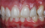 Figure 10  The prosthetic treatment of a single-unit porcelain-fused-to-metal crown with gingival ceramics created the illusion of elimination of the defect and was an excellent solution for this patient.