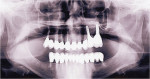 Figure 16  10-year results of periodontal-implant-prosthodontic reconstruction.