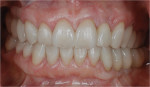 Figure 27  The healthy periodontal and dental implant foundation and gingival symmetry set the framework for the completion of the lithium disilicate all-ceramic restorations.