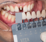 Figure 4&ensp; With the VITA Linearguide 3D-Master<sup>®</sup>, the new tab holder allows easier approximation to the teeth. .