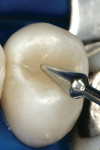 Figure 2h&ensp; A final increment of natural translucent shaded hybrid composite was placed, and the occlusal anatomy was developed with a burnisher.<sup>c</sup>