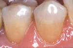 Figure 3c  The completed composite restorations exhibited bioesthetic integration at the dentogingival interface.