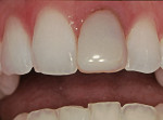 Figure 2  The gingival margin of the direct composite restoration on the maxillary left central incisor exhibited leakage and  discoloration over time.