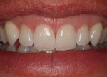 Figure 5c  Final healing demonstrates the dramatic improvement in the appearance of the teeth and smile postoperatively.