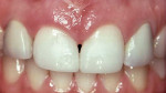 Figure 6b  Post-frenectomy and anterior direct composite bonding, the patient was pleased despite the fact that
