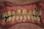 Figure 1  Preoperative view of a fully-retracted smile of a 40-year-old patient with no medical contraindications to the treatment plan. After examination, the authors selected an initial average shade.