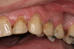 Figure 4  Caries control was performed on tooth No. 11. In this procedure, a lighter shade was selected to match the tooth after the whitening process.