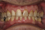 Figure 5  Five days after initial whitening treatment, the patient presented for a coping try-in for the anterior crowns.