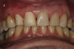 Figure 6  Caries control was performed on teeth Nos. 9 and 10 during whitening treatment due to sensitivity.