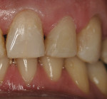 Figure 7  Caries control was performed on teeth Nos. 9, 10, and 11.