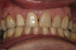 Figure 8  Whitening treatment resumed on day 10.