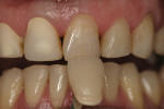 Figure 9  Final shade selection for crowns and composite restorations was made after two weeks post-bleaching treatment.