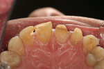 Figure 11  Lingual view of prepared teeth at the time of the patient's final visit.