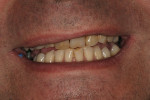 Figure 16  As evident from this preoperative maxillary arch view of the patient's smile, considerable work was needed.