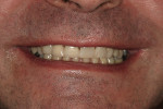 Figure 17  The patient was overwhelmingly satisfied with the results of the authors' work, which can be appreciated in this postoperative smile view of patient's maxillary arch treatment.