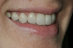 Figure 15  Alternate postoperative image of the patient's smile.