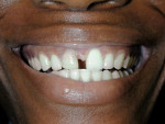 Figure 2  Unretracted view of the patient's smile. Note the dark color of the right central incisor and large diastema between teeth Nos. 8 and 9.