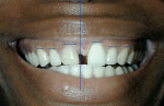 Figure 9  Unretracted view of the patient's smile showing that the existing dental midline is left of the patient's facial midline, and gingival zeniths are unsymmetrica