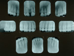Figure 11  Preoperative periapical radiographs. Note that tooth No. 8 tested non-vital and has a history of trauma and fracture. It was also dark.