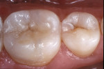 Figure 10  In this postoperative occlusal view of the laboratory processed composite resin restoration, note the harmonious integration of the composite resin with the existing tooth structure.