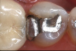 Figure 11  A patient presented with a fractured amalgam restoration with interproximal decay on a mandibular left second premolar.