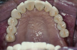 Figure 4  Occlusal view of the completed bridge.