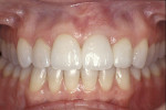 Figure 15  The final bridge and veneer restorations were seated using composite resin cement according to a dentin bonding protocol.