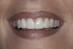 Figure 19  The treatment plan consisted of placing full-coverage leucite-reinforced glass-ceramic restorations on the two central incisors and conservative veneers on the two lateral incisors to correct the fractures and create an ideal orthodontic r