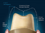 Figure 12  This diagram illustrates the preparation requirements for a posterior tooth.