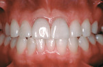 Figure 4  View of the porcelain veneers on the maxillary central incisors displaying chronic inflammation at the one-year recall (veneers created by Steve McGowan, CDT).