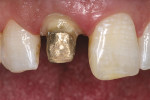 Figure 3  Preoperative view of the crown preparation for tooth No. 8. Note the medium texture on tooth No. 9.