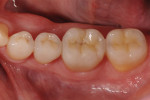 Figure 3  Representative photographs of: tooth preparation for posterior ceramic onlay restorations without buccal veneer (Fig 1) and with buccal veneer (Fig 2); occlusal view of posterior teeth restored with ceramic onlay restorations without buccal