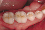 Figure 4  Representative photographs of: tooth preparation for posterior ceramic onlay restorations without buccal veneer (Fig 1) and with buccal veneer (Fig 2); occlusal view of posterior teeth restored with ceramic onlay restorations without buccal